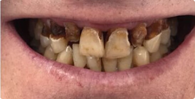 Dental Implants 02 Before