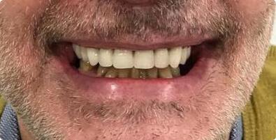 Dental Implants 03 After