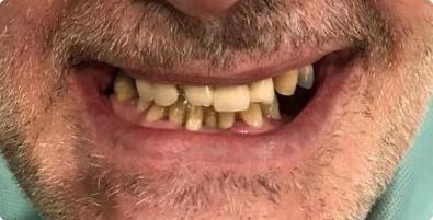 Dental Implants 03 Before