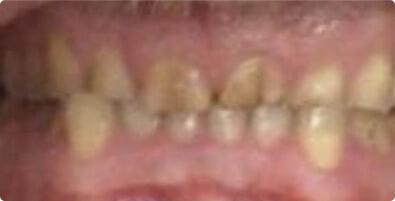 Dental Implants 04 Before