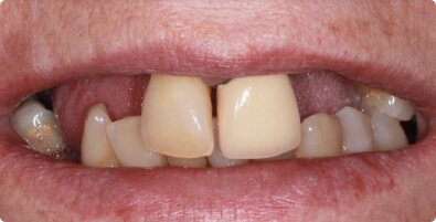 Dental Implants 05 Before