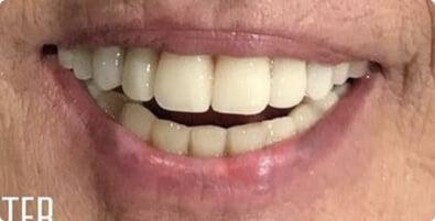 Dental Implants 07 After