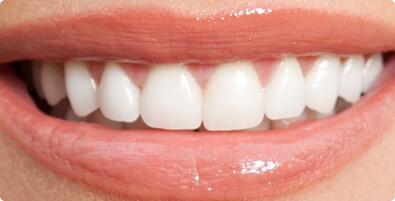 Smile Makeover 01 After