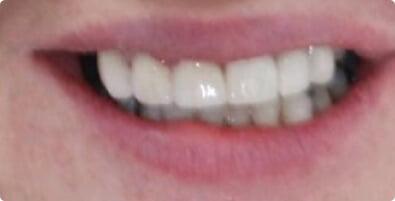 Smile Makeover 02 After
