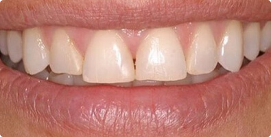Smile Makeover 08 Before