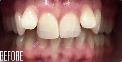 Teeth Straightening 01 Before