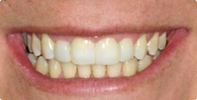 Teeth Straightening 02 After