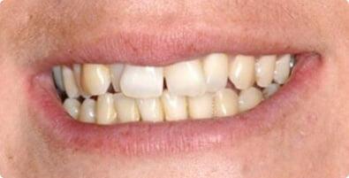 Teeth Straightening 02 Before