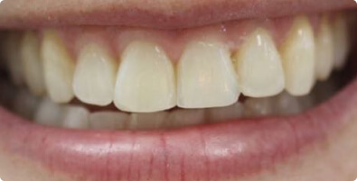 Teeth Straightening 03 After
