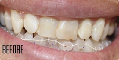 Teeth Straightening 04 Before