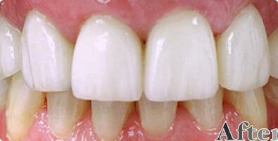 Teeth Whitening 01 After
