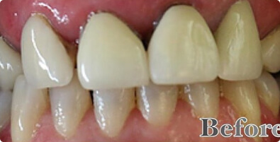 Teeth Whitening 01 Before