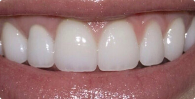 Teeth Whitening 03 After