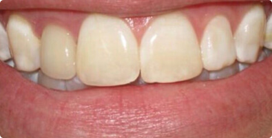 Teeth Whitening 03 Before