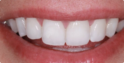Teeth Whitening 04 After
