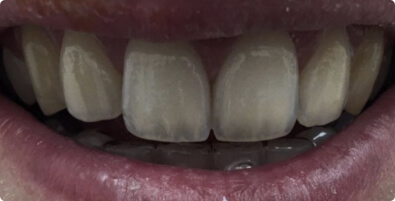 Teeth Whitening 04 Before