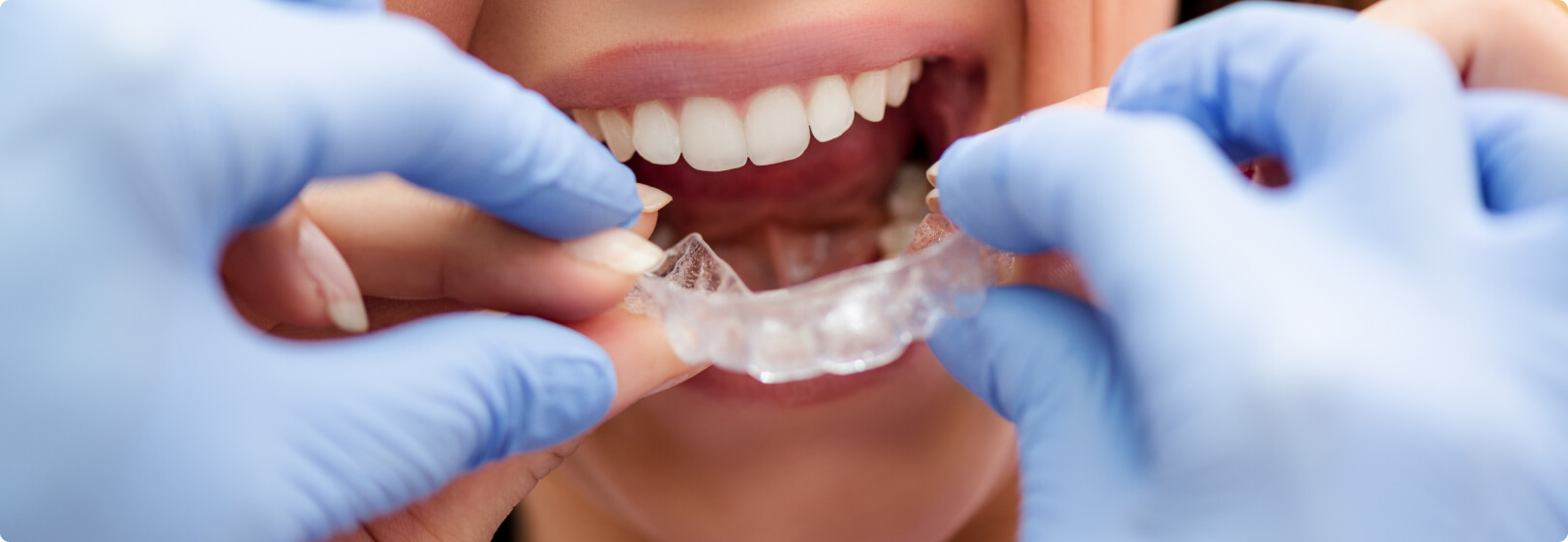 Choose Invisalign for Fast Results