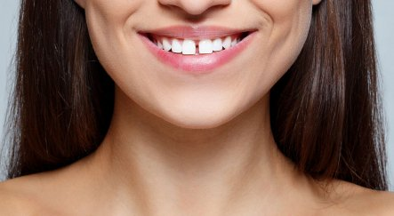 Ipswich dentists guide to gaps in teeth